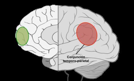 Vista lateral/sagital del cerebro, donde se puede ver la localización de las áreas identificadas en el estudio
