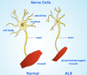 Esquema de qué ocurre en la ELA con las neuronas motoras