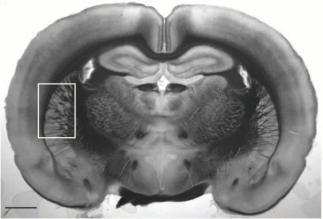 Corte coronal de cerebro de rata donde se puede ver