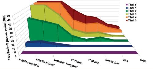 Progresión típica de la fisiopatología del Alzheimer según la escala de Thal (Fuente: Murray et al., 2015)